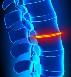 degenerative disc disease Image depicting compression in the disc space IDD Therapy
