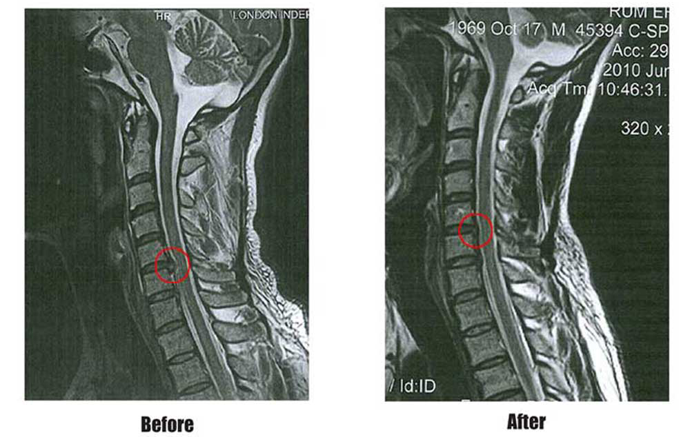 Patient MRI Bulging Cervical Disc Neck Before and After IDD Therapy